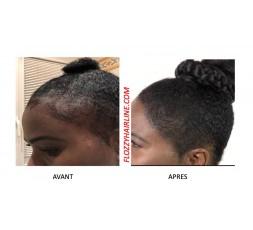 MS Hair Foundation - Epaissir Cheveux Fins