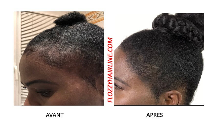Mèche à Tresser MS Hair Foundation - Epaissir Cheveux Fins